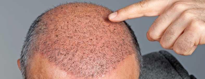 Il trapianto di capelli e la necrosi