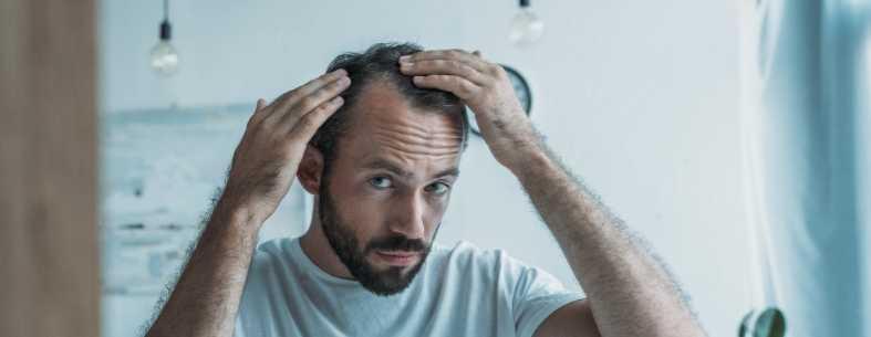 Il trapianto di capelli e quando farlo