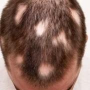 L'alopecia areata