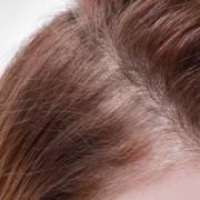 L'anestesia senza ago nel trapianto di capelli
