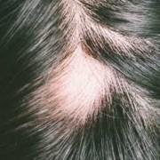 L'Alopecia androgenetica o calvizie maschile