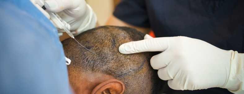 La cicatrice nel trapianto di capelli