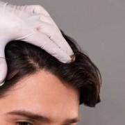 La mesoterapia per capelli