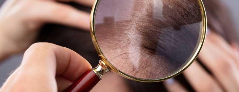 La perdita di capelli nelle donne | Yetkin Bayer