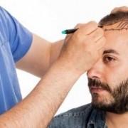 La zona donatrice nel trapianto di capelli