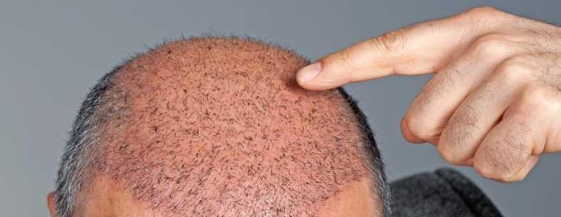 Le crosticine post trapianto di capelli