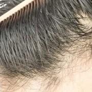 Trapianto di capelli alle tempie