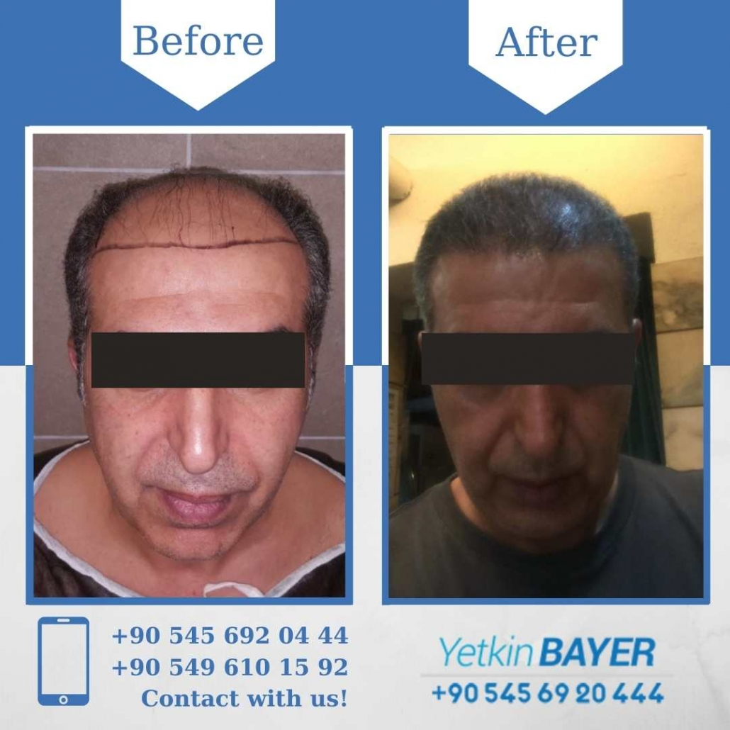 Hair Transplant in Turkey Before And After Results 1