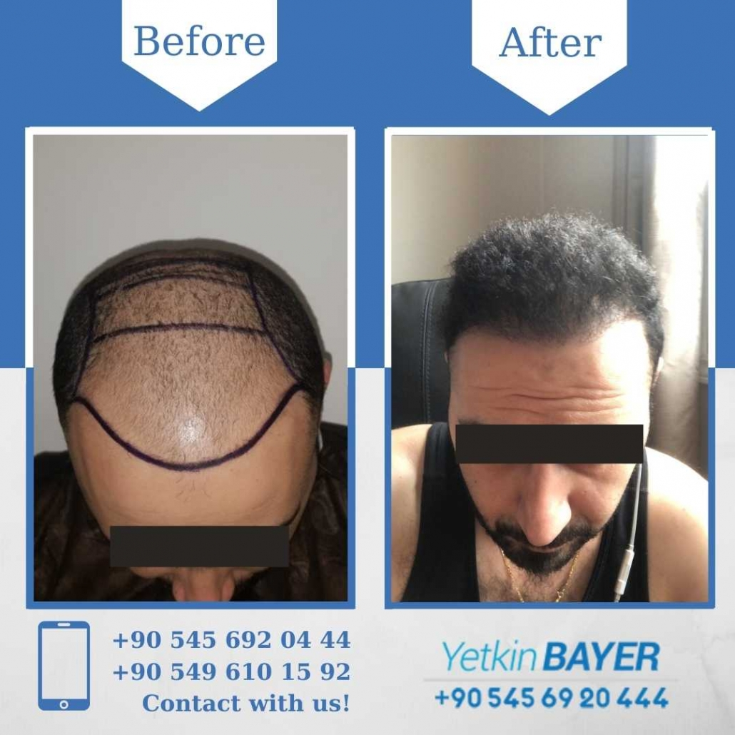 receding hairline hair transplant before and after