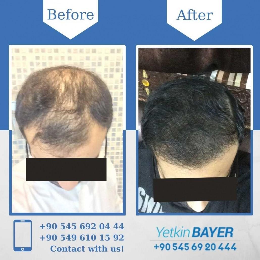 Greffe de Cheveux Turquie - Istanbul 8