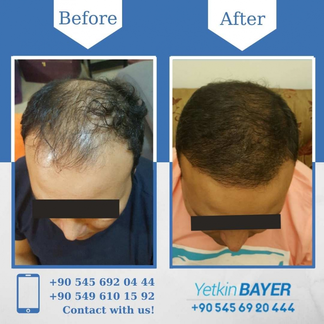 Greffe de Cheveux Turquie - Istanbul 9