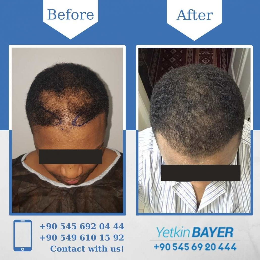 Dr. Bayer Clinics :トルコ自毛植毛 12
