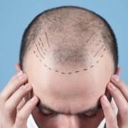 пересадка волос в турции цены