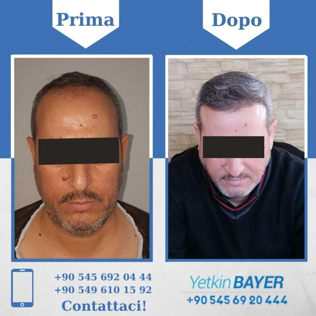 Prima e dopo il trapianto dei capelli - foto, risultati 15