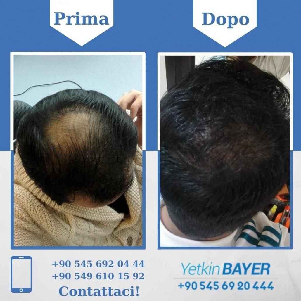 Prima e dopo il trapianto dei capelli - foto, risultati 14