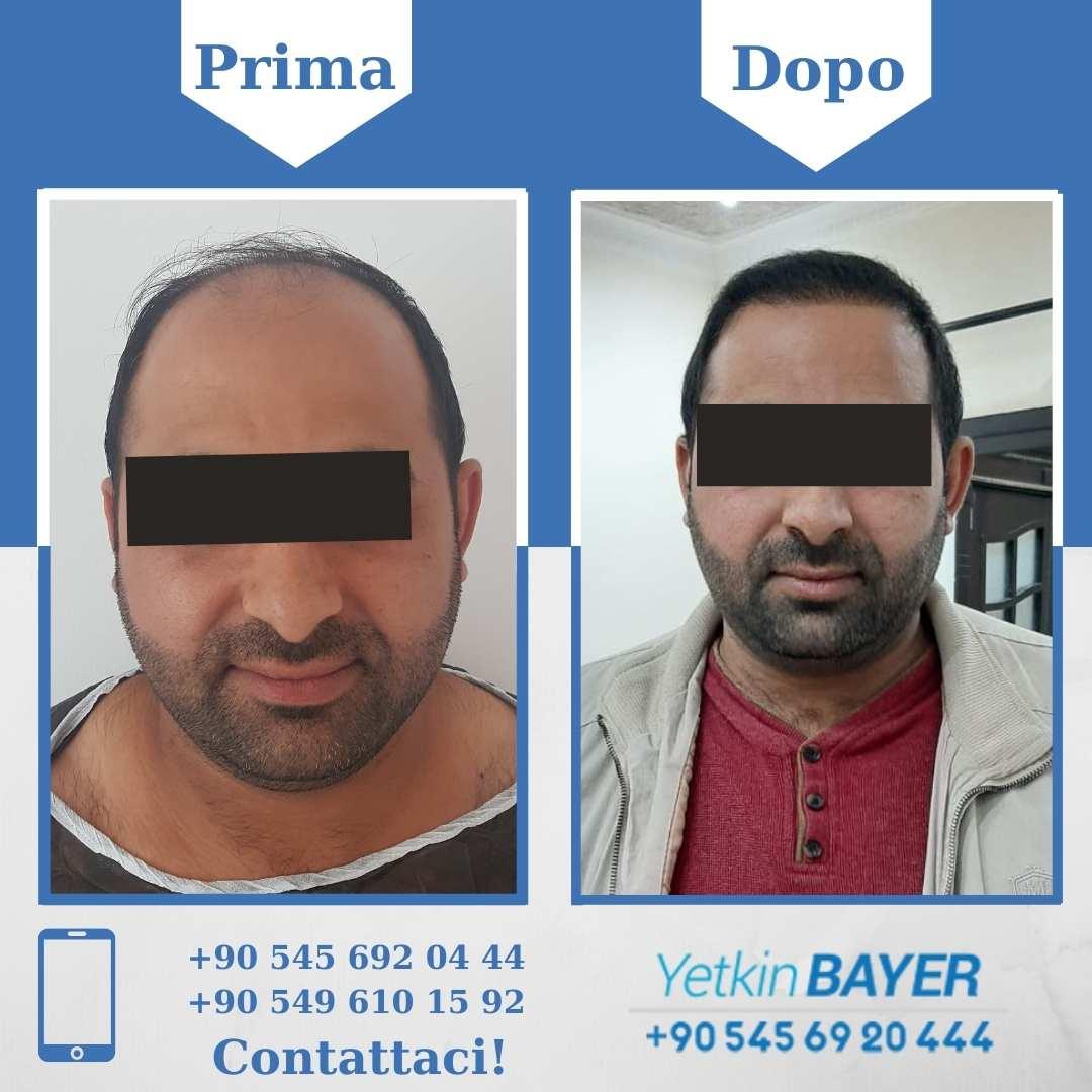 Il trapianto capelli in Turchia 15