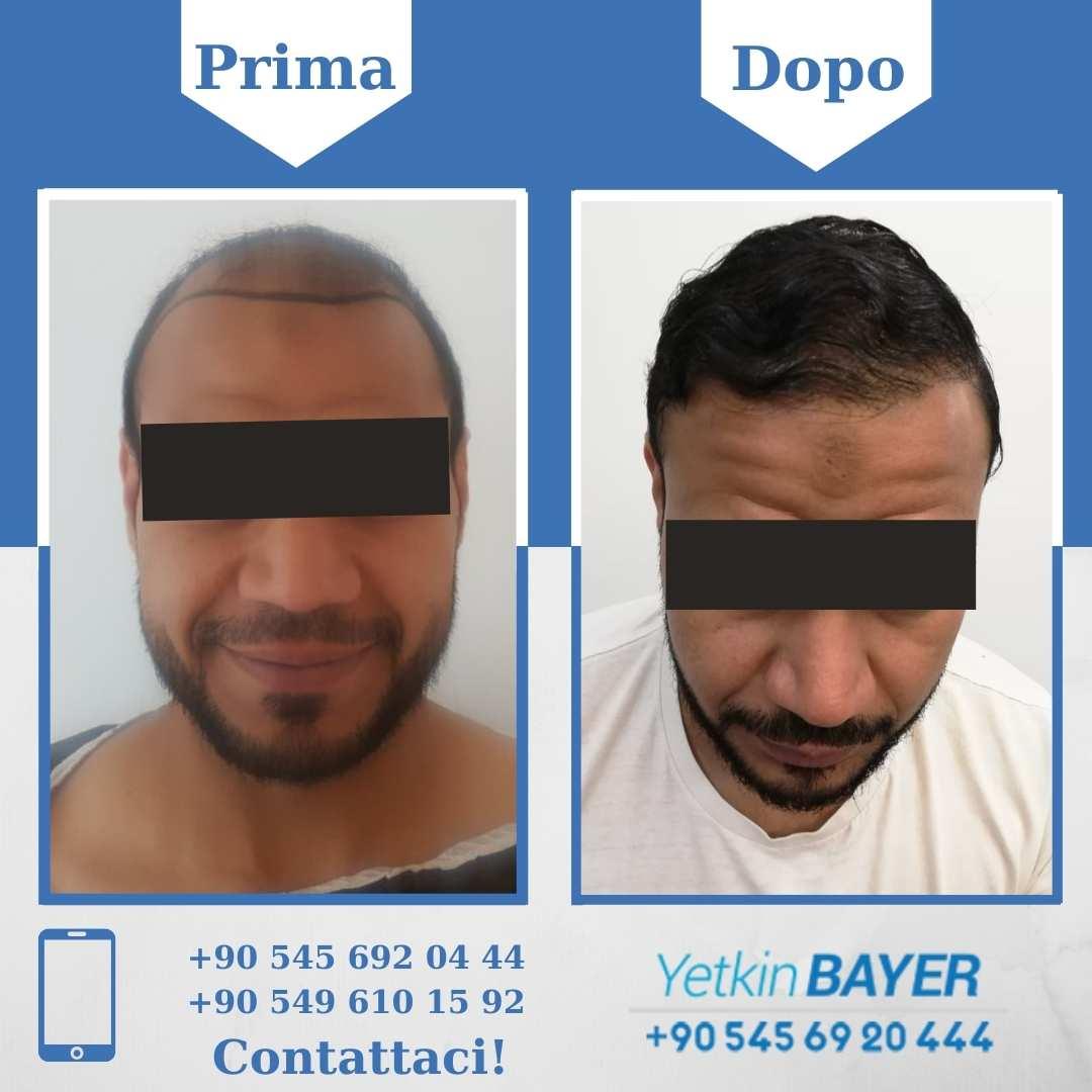 Il trapianto capelli in Turchia 16