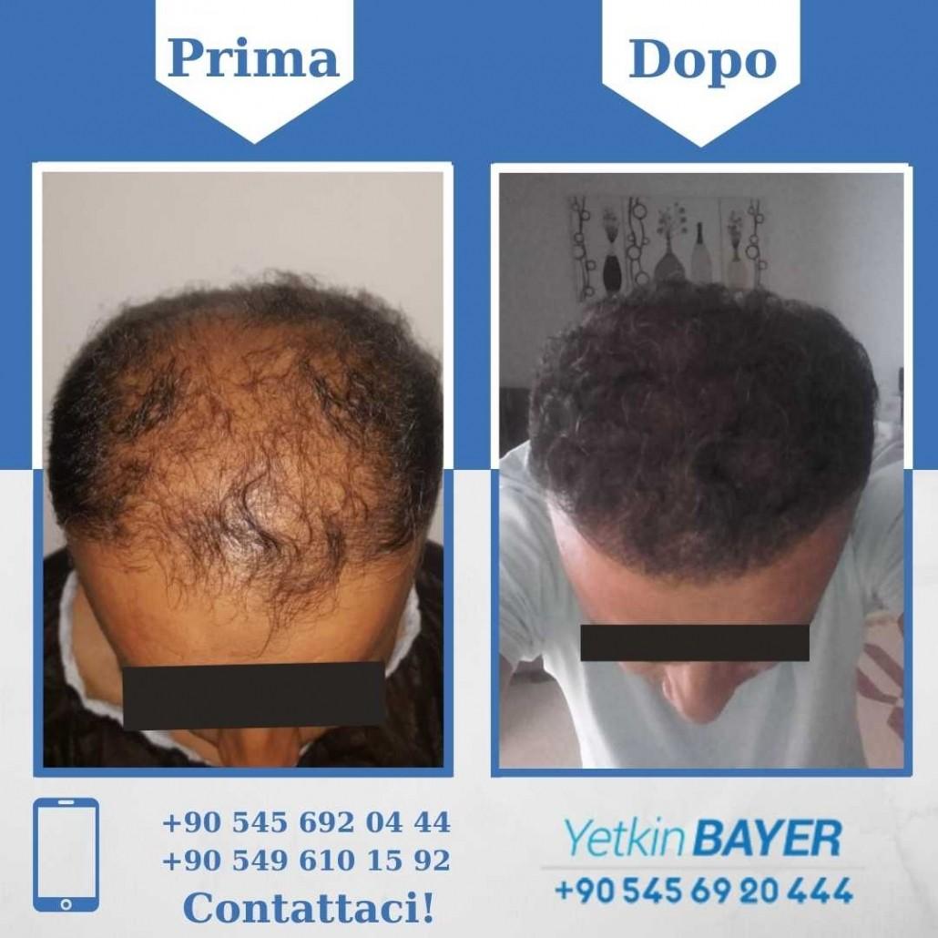 Prima e dopo il trapianto dei capelli - foto, risultati 20