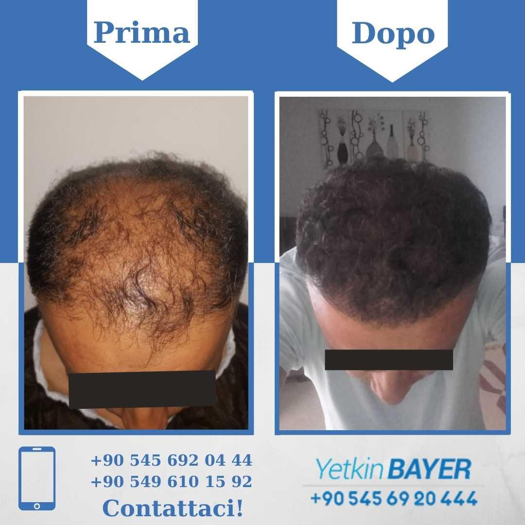 Il trapianto capelli in Turchia 17
