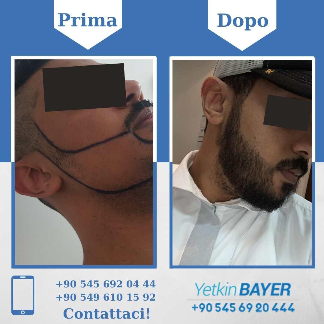 Il trapianto capelli in Turchia 18