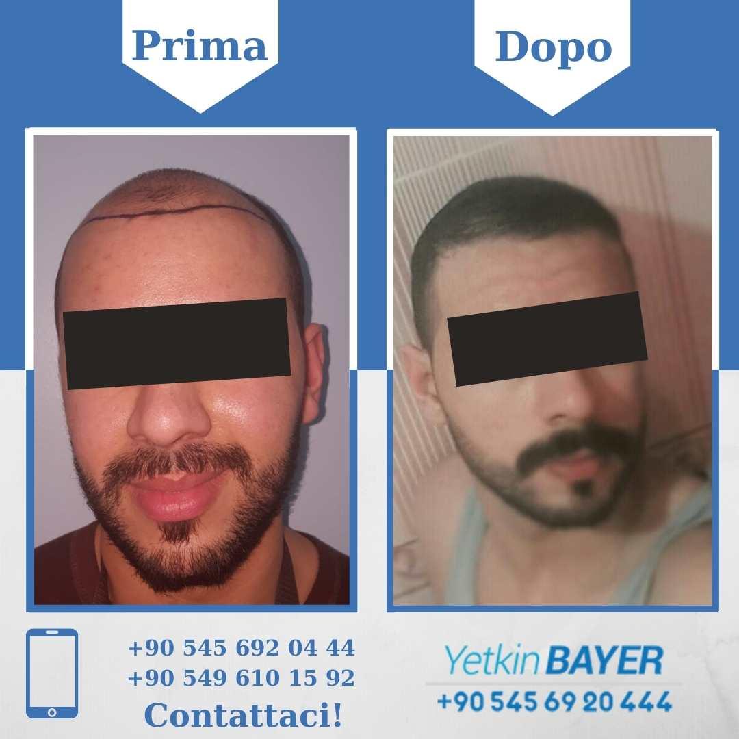 Il trapianto capelli in Turchia 19
