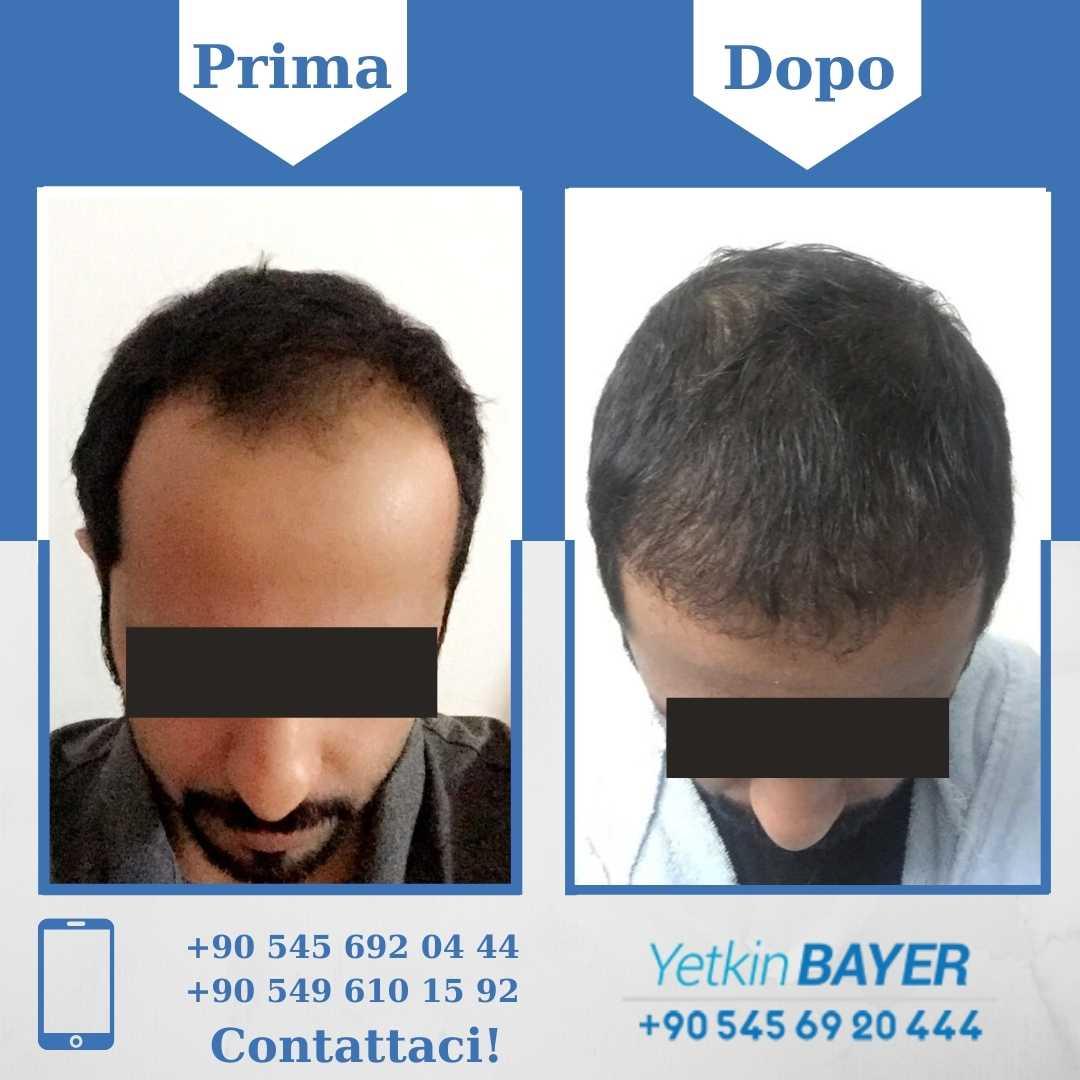 Il trapianto capelli in Turchia 20