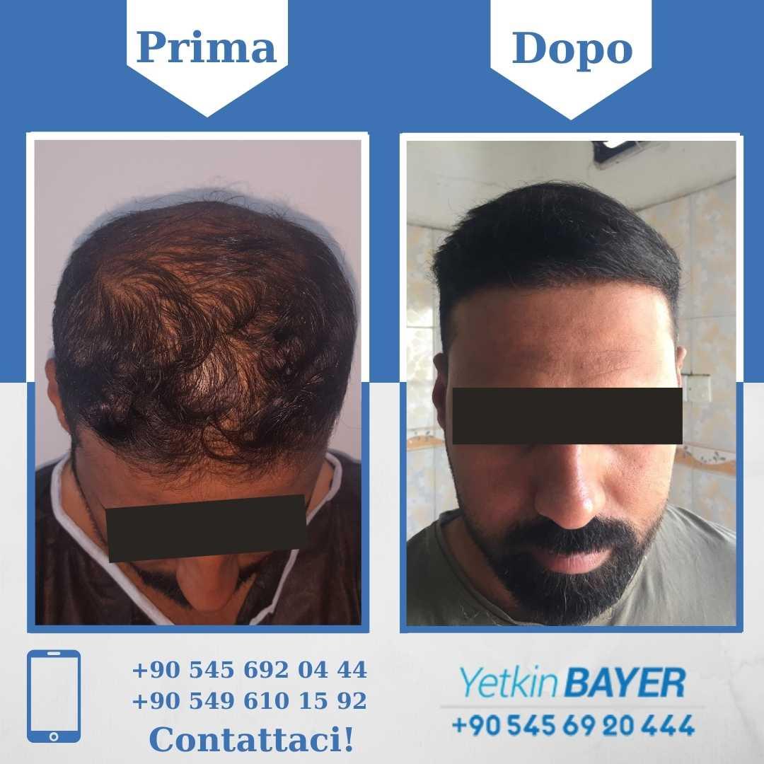 Il trapianto capelli in Turchia 21