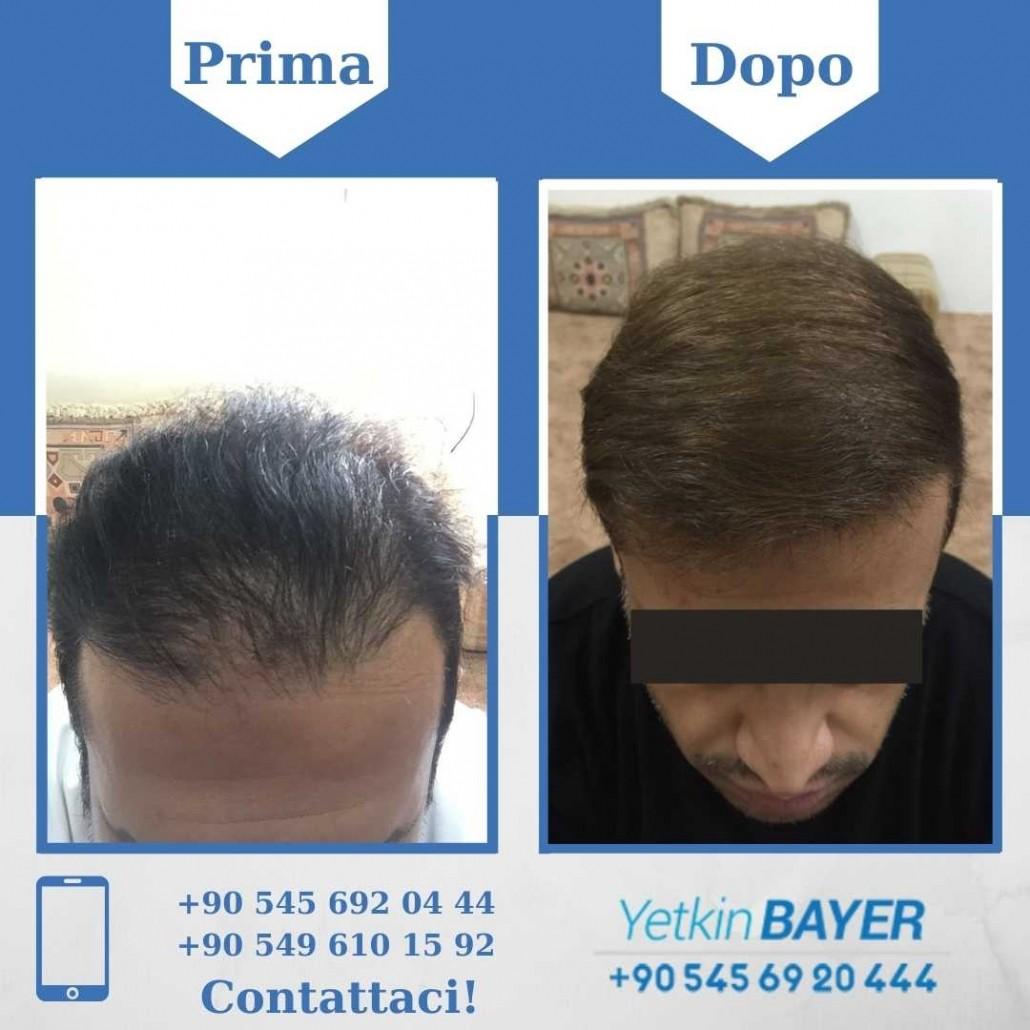 Prima e dopo il trapianto dei capelli - foto, risultati 12