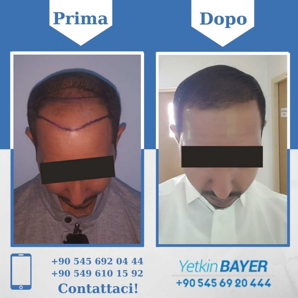 Prima e dopo il trapianto dei capelli - foto, risultati 13