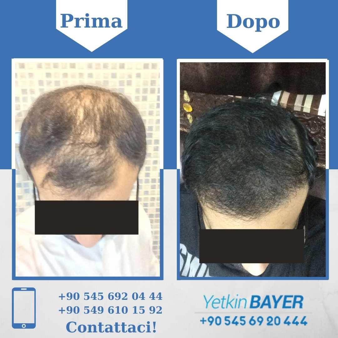 Il trapianto capelli in Turchia 11