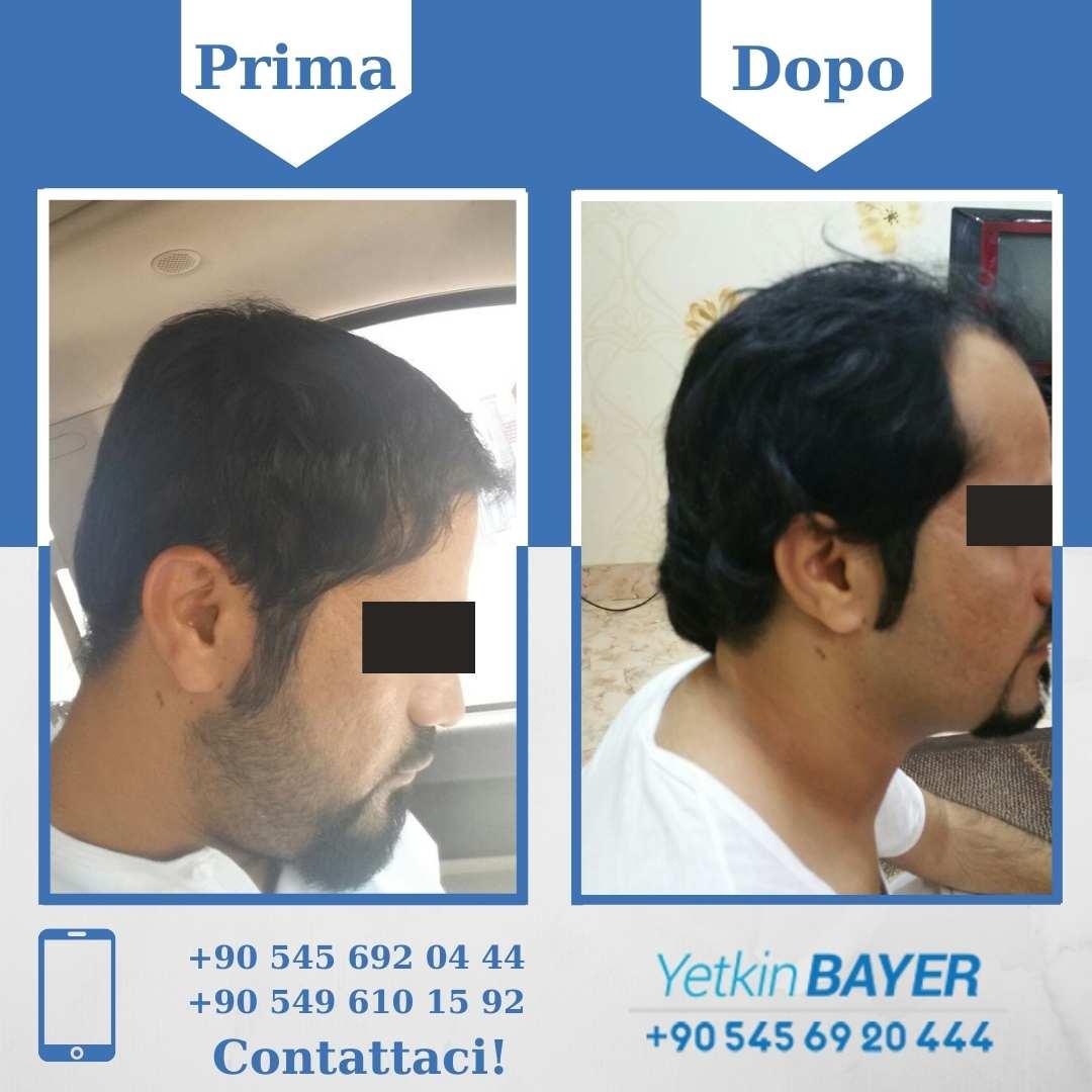 Il trapianto capelli in Turchia 10