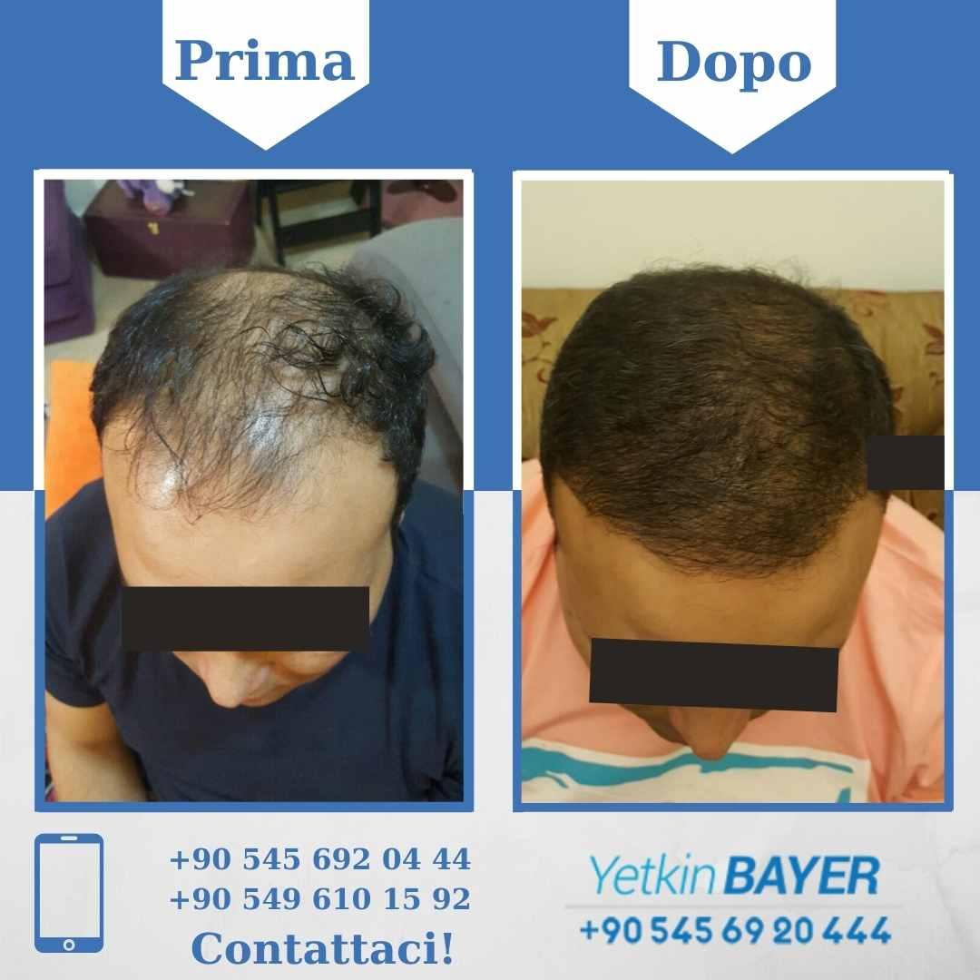 Il trapianto capelli in Turchia 9