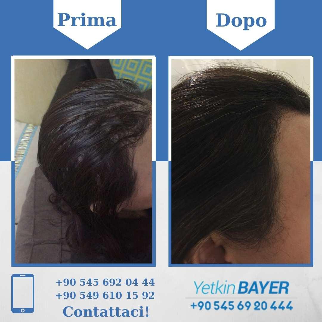 Il trapianto capelli in Turchia 7