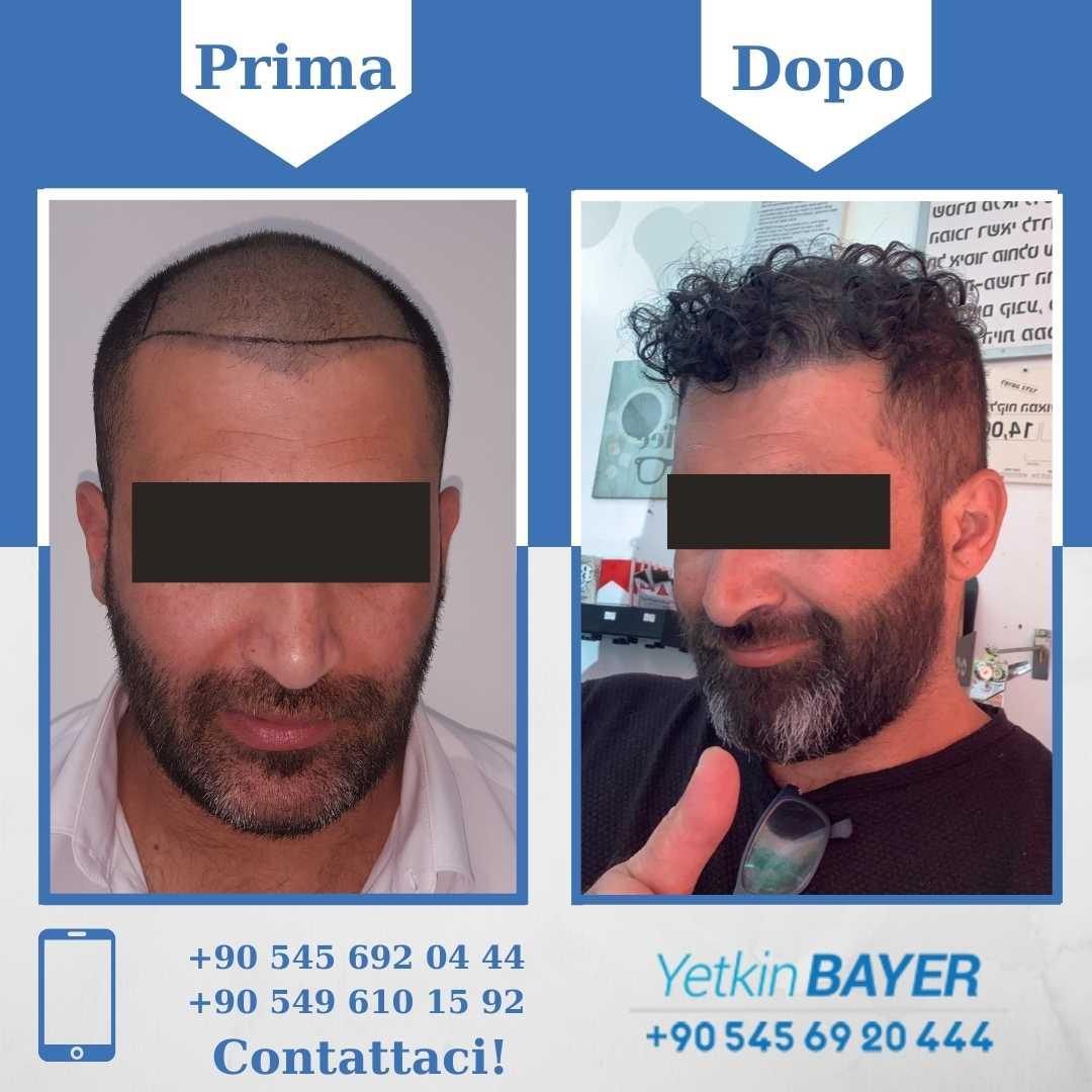 Il trapianto capelli in Turchia 5