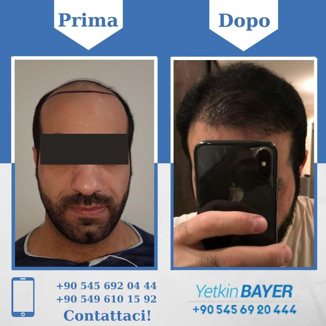 Il trapianto capelli in Turchia 3