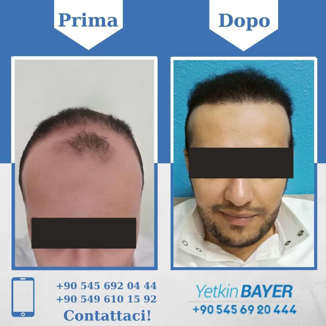 Il trapianto capelli in Turchia 2