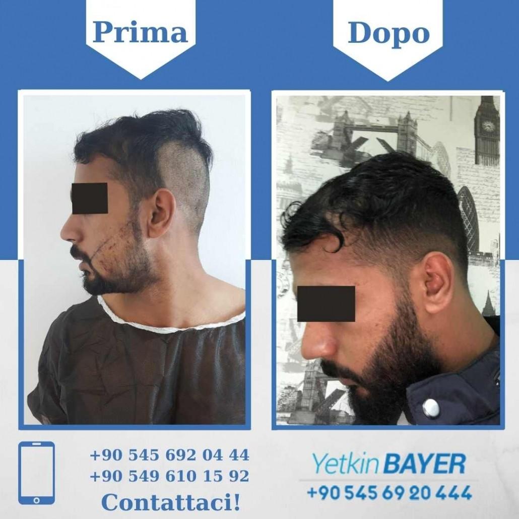 Prima e dopo il trapianto dei capelli - foto, risultati 16