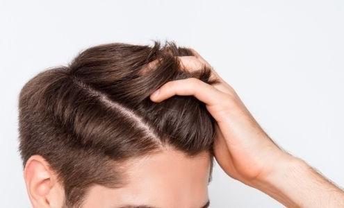 כמה זמן לוקח לשיער לצמוח אחרי השתלת שיער