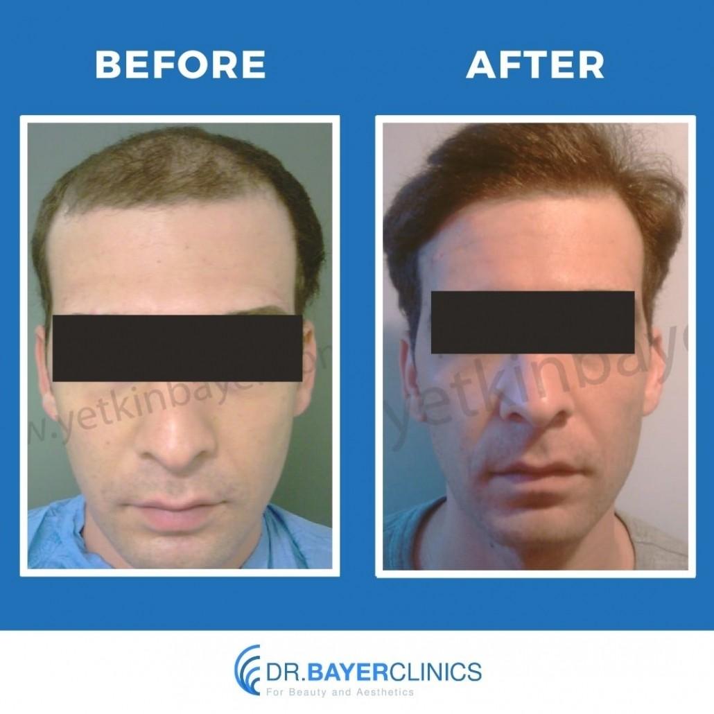 Dr. Bayer Clinics 22