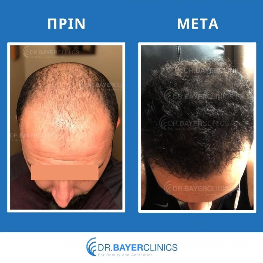 Μεταμόσχευση μαλλιών στην Τουρκία 9