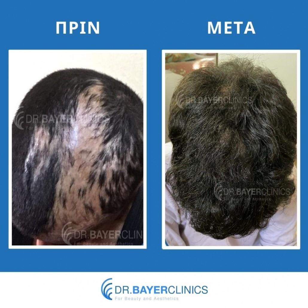 Μεταμόσχευση μαλλιών στην Τουρκία 13