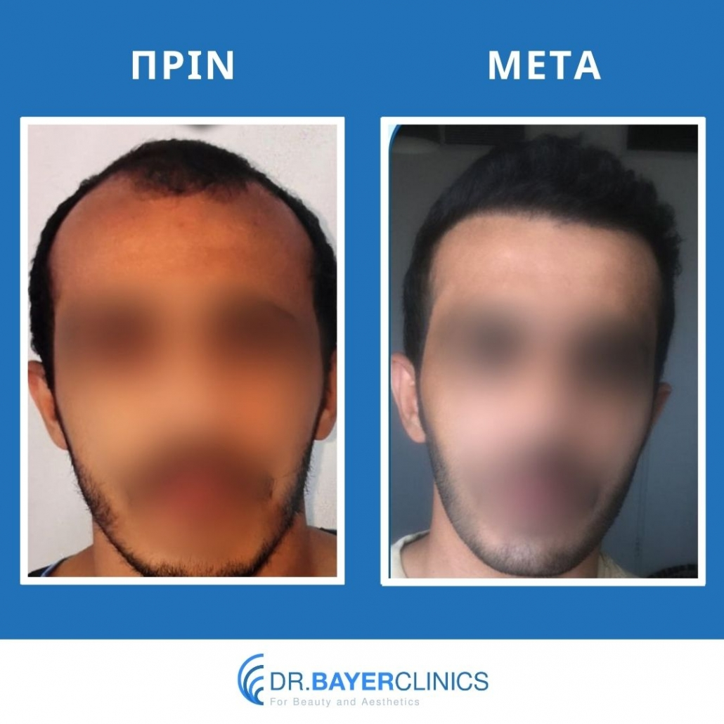 Μεταμόσχευση μαλλιών στην Τουρκία 14