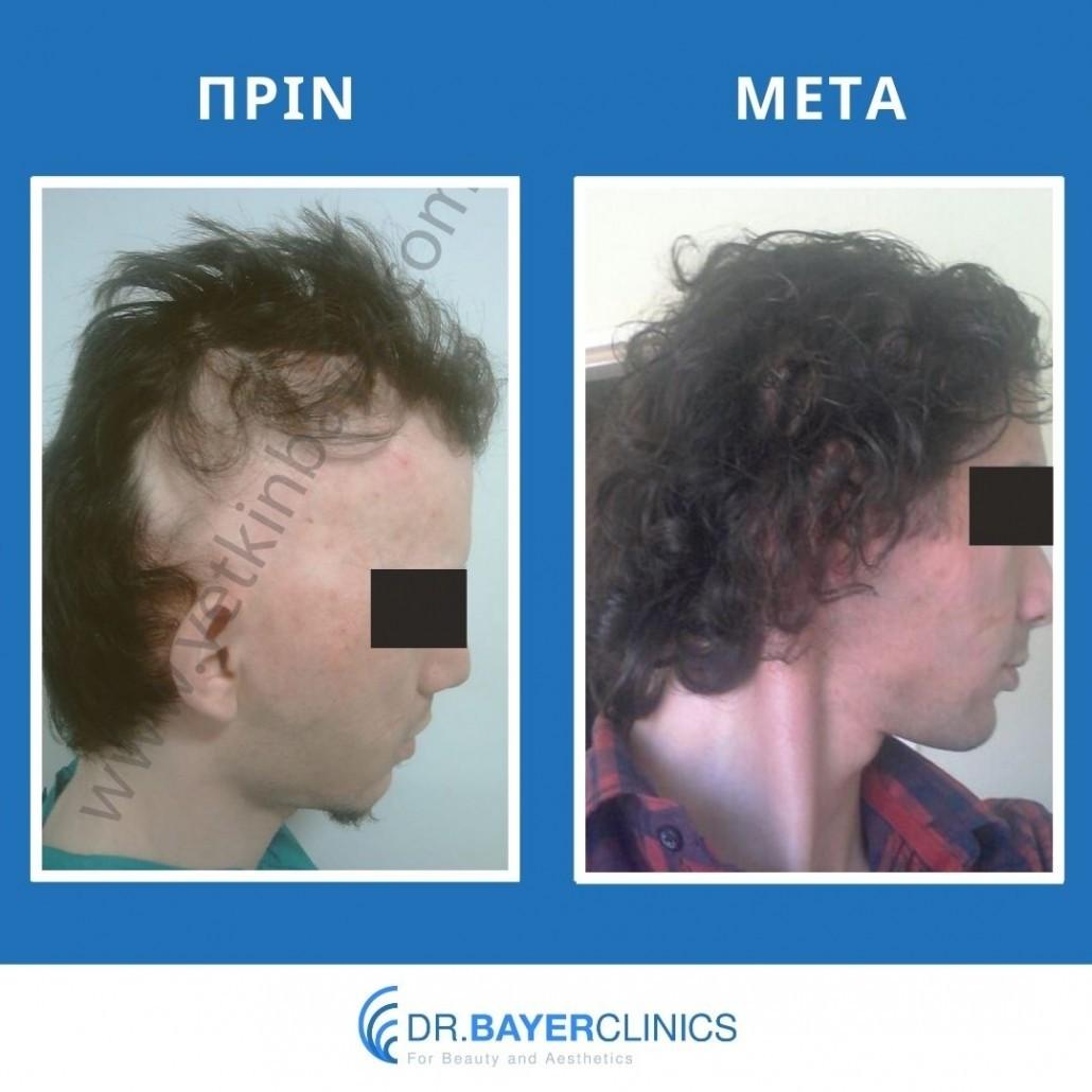 Μεταμόσχευση μαλλιών στην Τουρκία 16