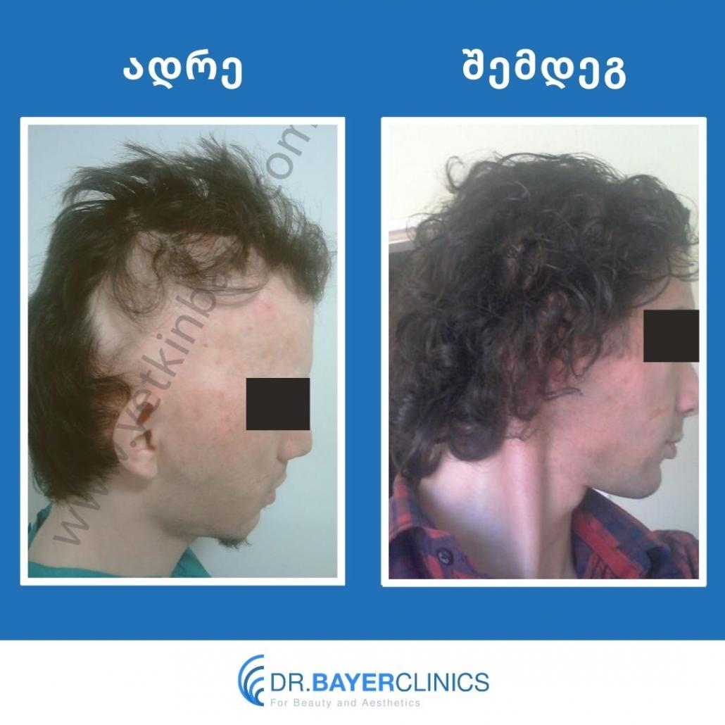 თმის გადანერგვა თურქეთში 16