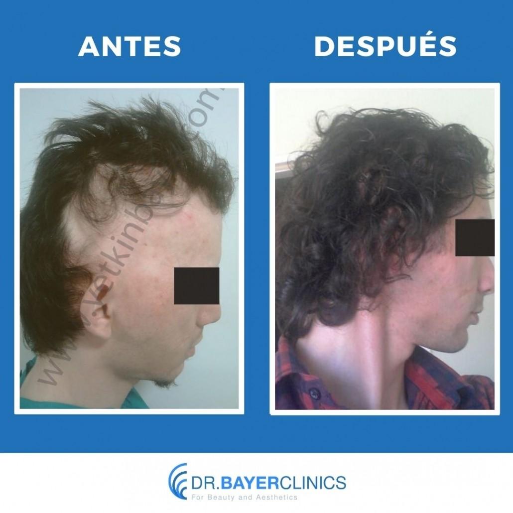 cirugía de trasplante de cabello antes y después