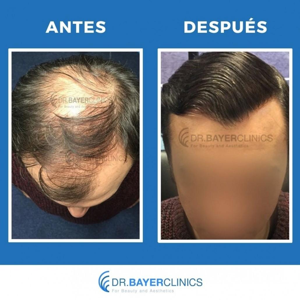 cirugía de trasplante de cabello antes y después estambul