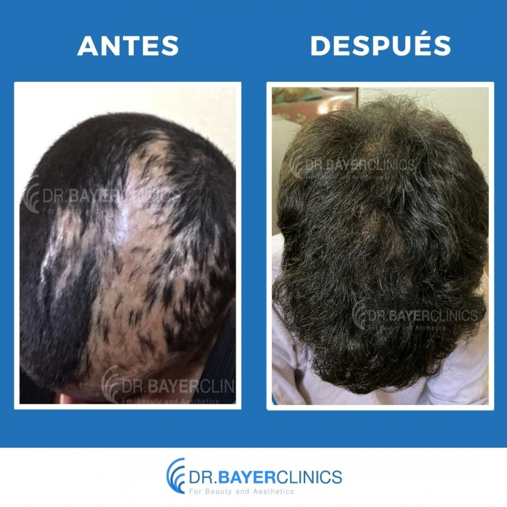 cirugía de trasplante de cabello antes y después turquia