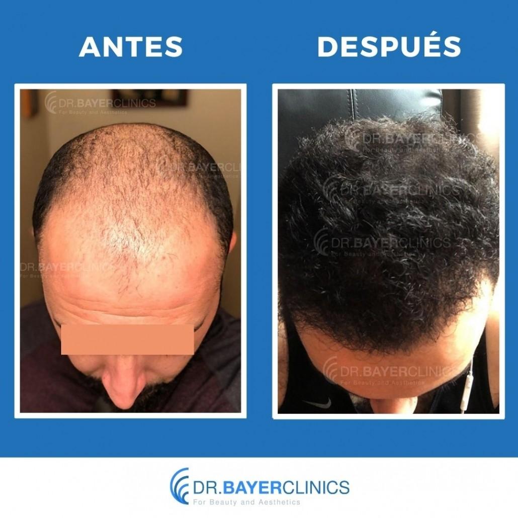 cirugía de trasplante de cabello antes y después turquia estambul