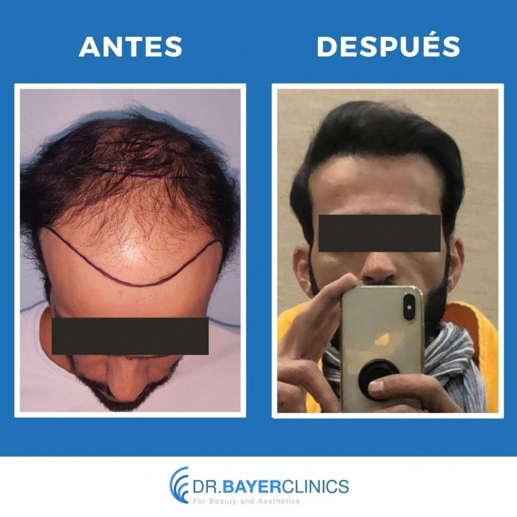 corona de trasplante de cabello antes y después