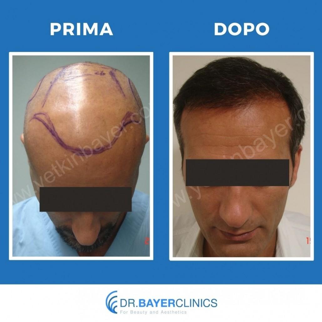 Trapianto capelli in Turchia 7